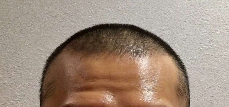 脱毛 症 円形 円形脱毛症の治療に使われる6つの薬と確実に治すための全ポイント